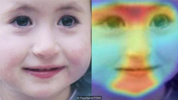 我们的面部特征可能泄露某些罕见遗传疾病的微妙信息,机器学习正在帮助医生识别这些特征。