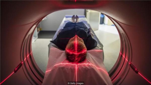 通过从医学扫描中寻找大脑新陈代谢的细微变化,人工智能可以使阿尔茨海默氏症的诊断提早好几年。