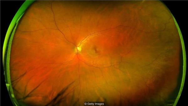 眼睛后部视网膜上血管的分布有助于揭示你是否有心脏病发作的风险。