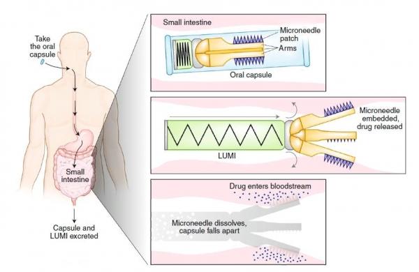图 | 腔内展开微针注射器(LUMI)示意图,LUMI 放置在肠溶胶囊中,当其进入小肠后启动,并将载药微针注入小肠壁,可降解部分在几个小时内溶解,不可降解部分通过消化道排出体外(来源:Nature Medicine)